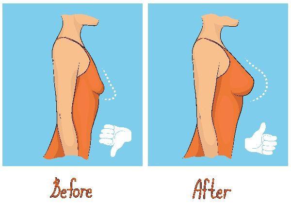 補整下着をつけると垂れるバストを改善できる?